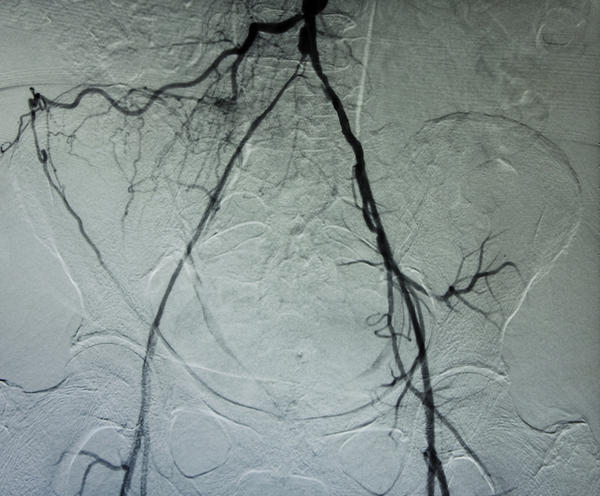 Does a CT angiogram also show bone damage?