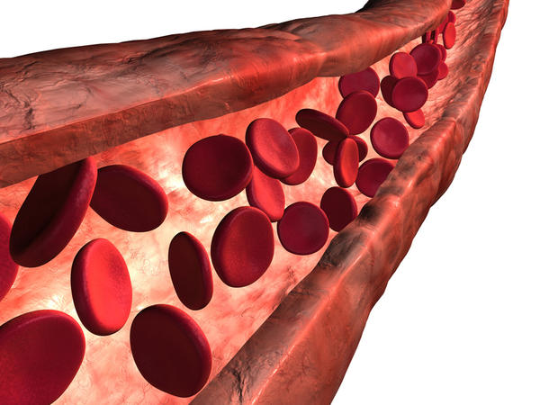 Why does plaque form in the arteries?
