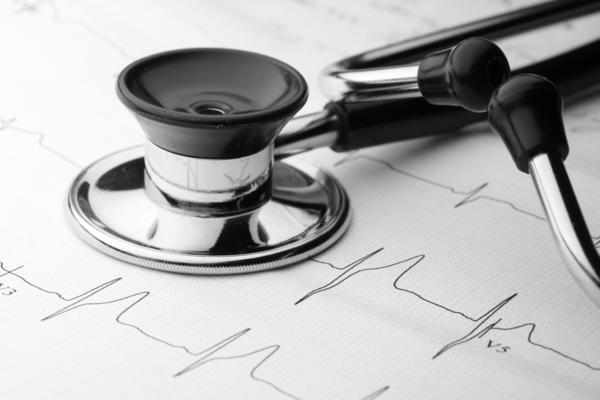 In an EKG what does nsr mean and what does LBBB mean?