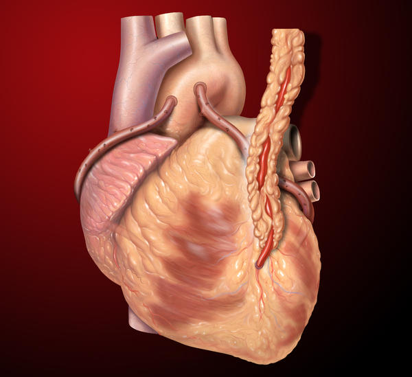 What is the risk rate on coronary artery bypass surgery?
