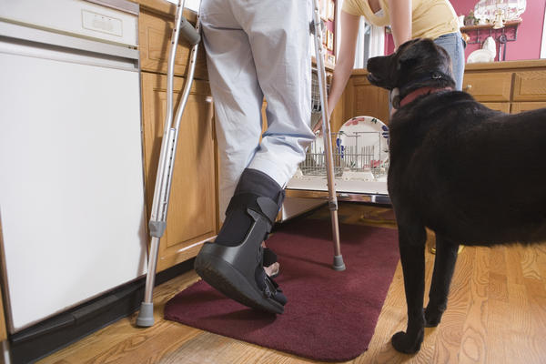 What is it like to walk after a fibula fracture after the cast is removed?