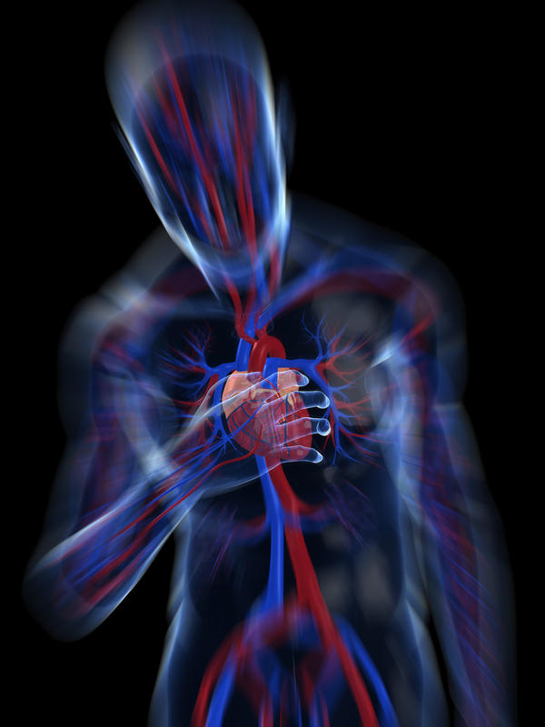 Can stress cause a heart attack in a teenager?