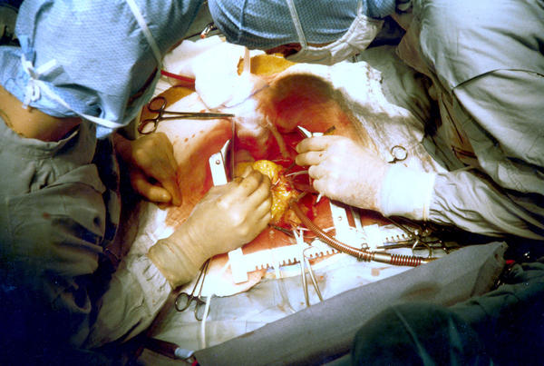 What person lived longest after open heart surgery?