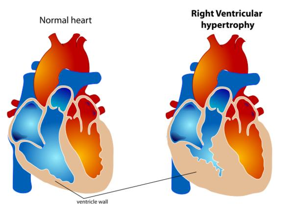 What are signs and symptoms of hypertrophic cardiomyopathy (heart disease)?
