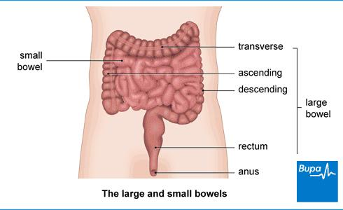 My husbands bowel movements are liquid and he has stomach aches. What should he take?