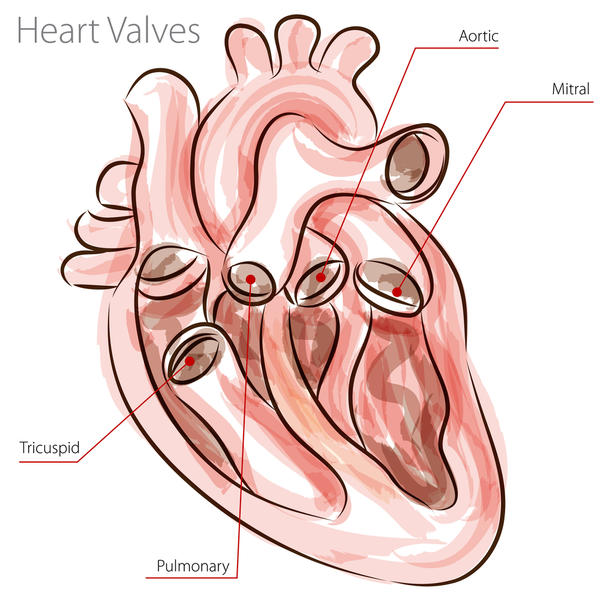 Is mitral regurgitation and mitral valve prolapse the same?
