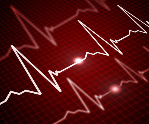 What causes pulseless ventricular tachycardia?