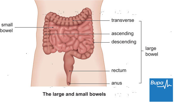 Is there any connection btw hemorrhoids and upper abdominal discomfort?
