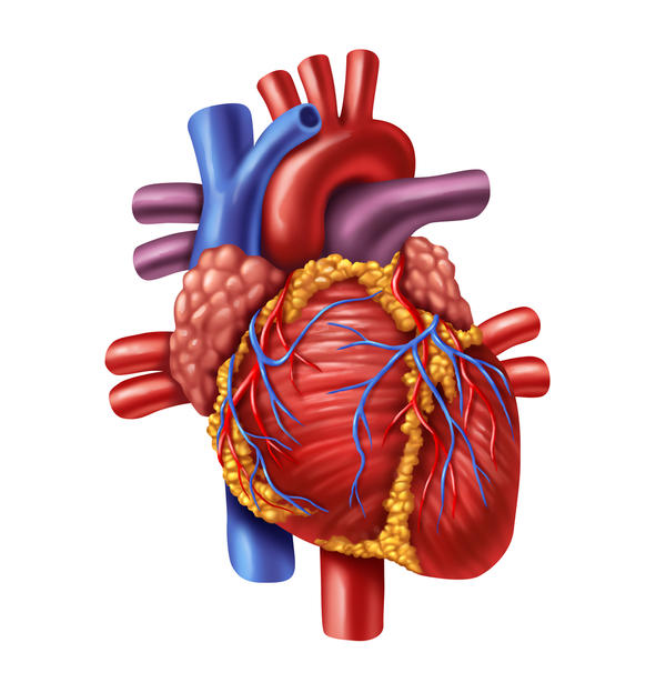 How would a blockage in one of the coronary arteries affect the hearts stroke volume?