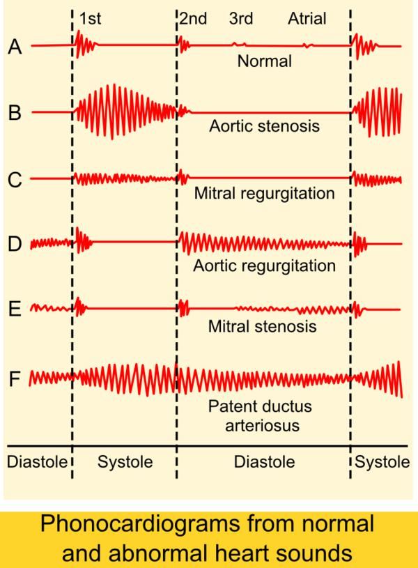 Aortic stenosis --is it serious?