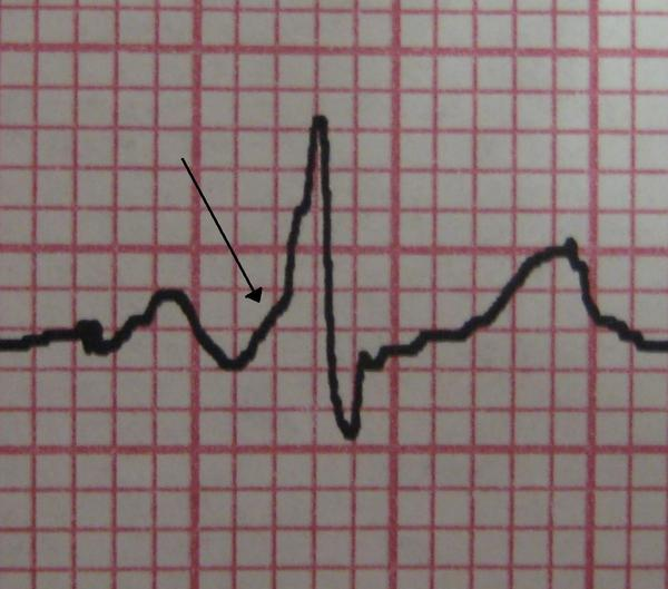 My cardiologist told me that I have a short pr interval what does that mean?
