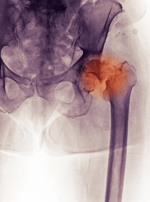 How is electrical stimulation used to treat a hip fracture?