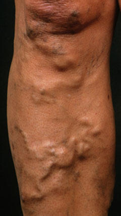 Should varicose veins ever feel hot to the touch?