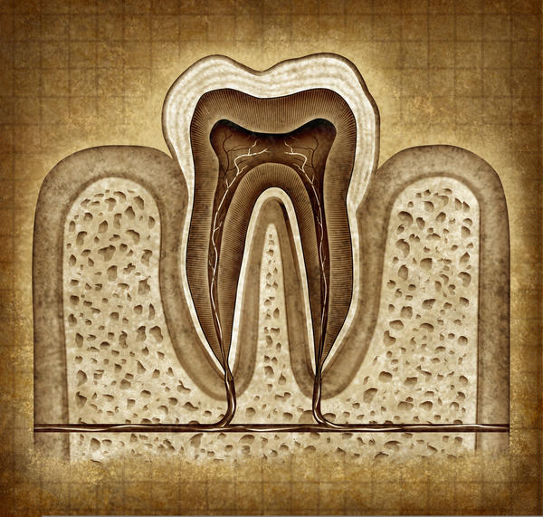 What to do if I have crack in tooth with root canal?