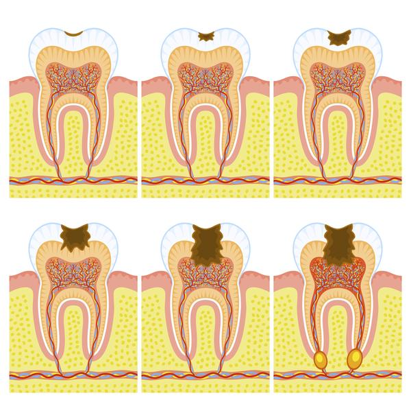 How difficult is it to get a broken back tooth salvaged?