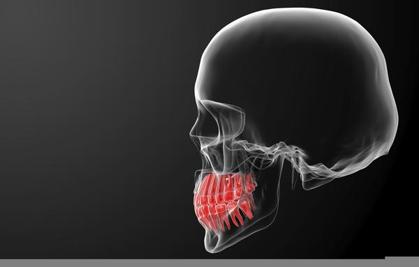 Dizziness & headaches, could this be caused by wisdom teeth coming in?