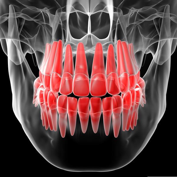 Wisdom teeth comn in;sore on right gum(swelln goes up/down; bleeds sometimes;gross) little pain under jaw. Mom says normal cuz skin's splitn. Is it???