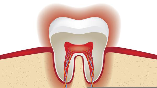 In my bottom teeth my incisor got no enamel on it and looks thin. What will happen if I lose a layer of dentin. Can't have crown I've got swollen gum?