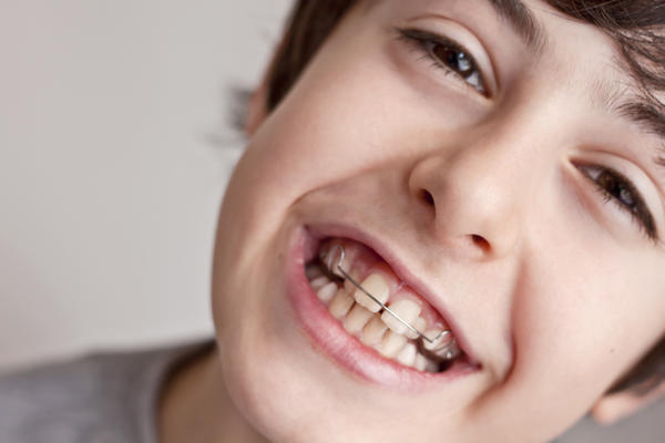 Can it hurt to get braces tightened?