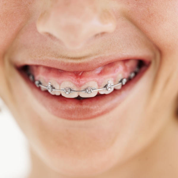 How much do braces hurt on a scale of 1 to 100?