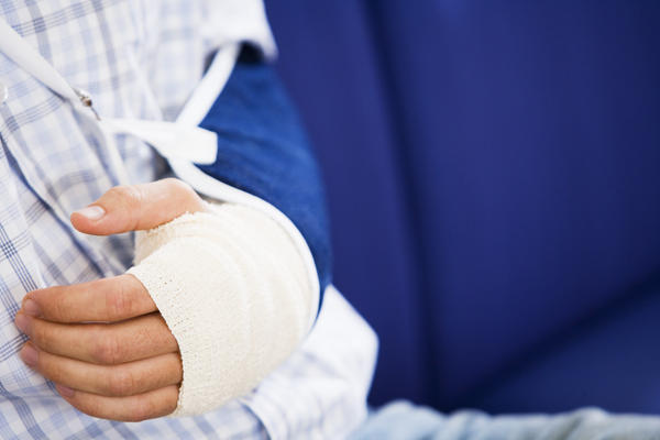 Does a fractured elbow require a cast?