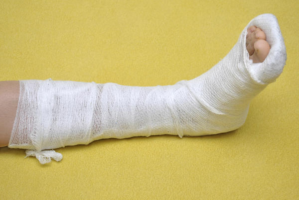 When will a broken foot typically heal?
