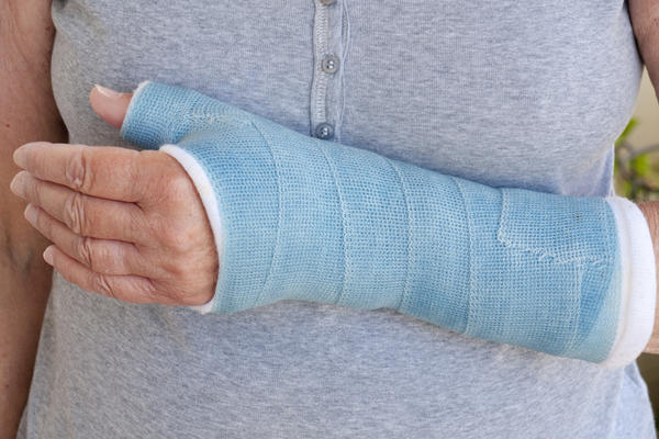 How can you deal with a broken bone without getting a cast?