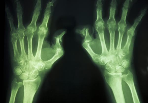 I broke my finger 13 yrs ago.  X-rayed and had PT. Knuckle had a tiny piece of bone chipped off. Finger feels jammed and can't bend as far as others.