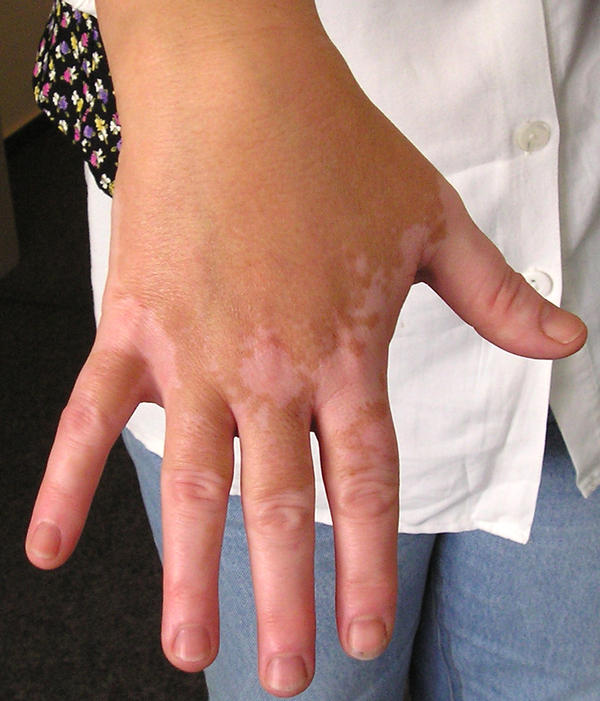 What are the causes of vitiligo, and how does it go away?