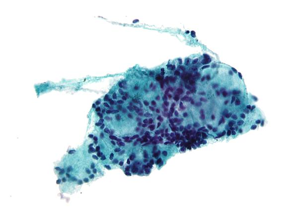 1 CM solid node l thyroid lobe a mixed micro and macro- follicular lesion fna consists of follicular cells in small follicles microfollicles & small sheets displaying extensive hurthle cell changes ?