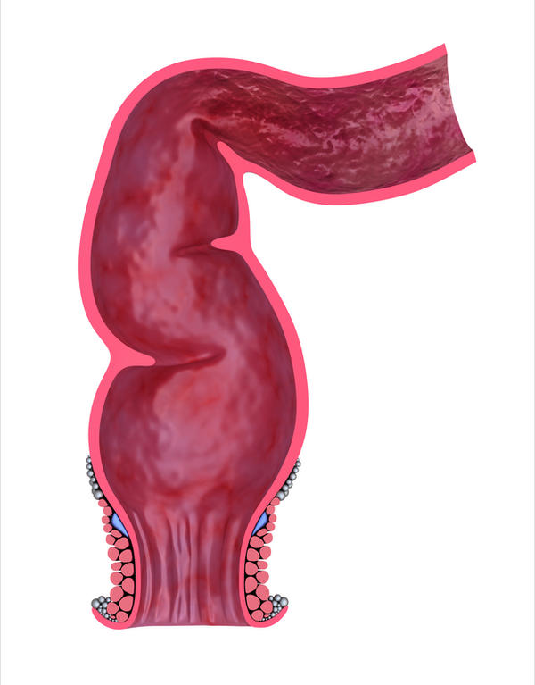 What would cause a protruding line that looks like a tube under the skin from the.Bottom of vagina to anus? Feels like i constantly need to have a bowelvmovement, but cannot, and pain during sex and defacation.
