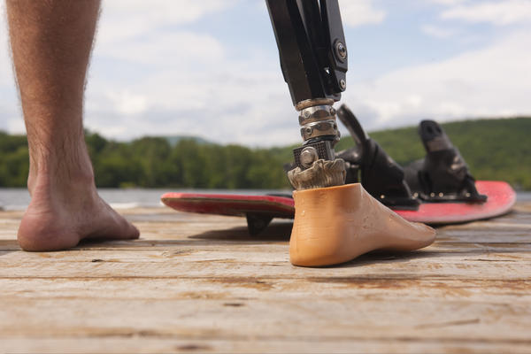 How long does it take to get used to prosthetic limbs?