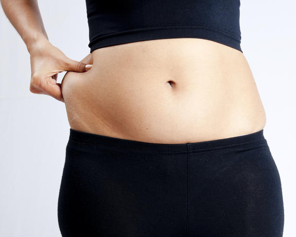 How long should I wait to have a tummy tuck afterc section and what do u tjthink about tummy tucks?