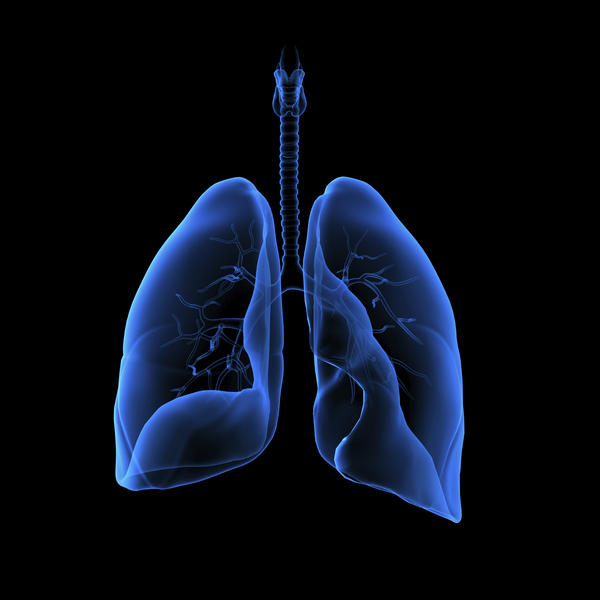 What are the symptoms of chronic bronchitis with and without lung cancer?