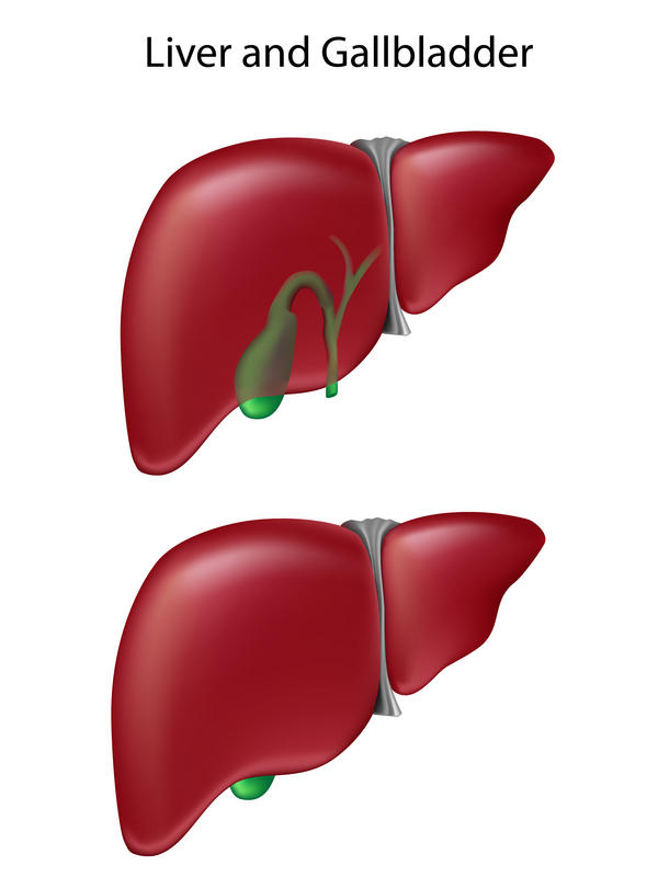 What foods should I avoid if I have gallstones and a fatty liver?