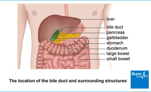 How to prevent gall bladder symptoms without surgery?