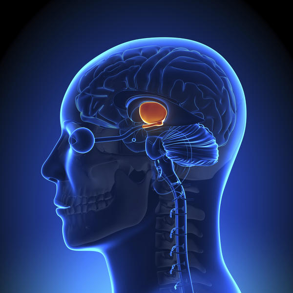 Can a vascular AVM in the brain cause brain cancer or any type of cancer or stroke down the line?