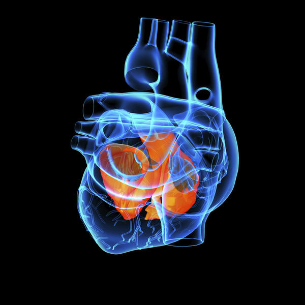 What does it mean if the heart is enlarged in transverse diameter with unfolding thoracic aorta?