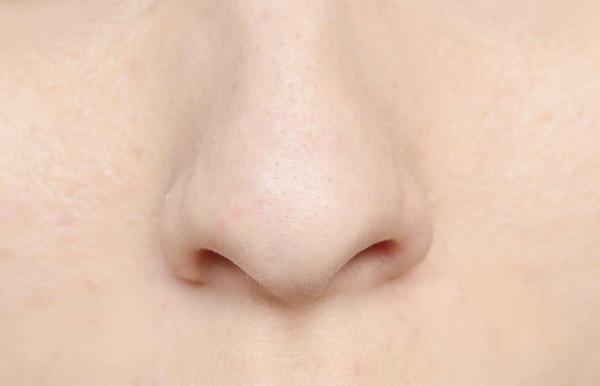 My nose is swollen it hurts a lot and have clear scabs in it on the right side just appeared like two days ago.....what should I do?