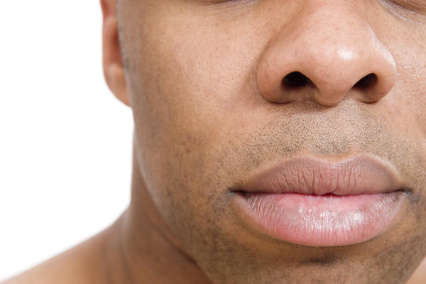What to do if I have a bulbous nose and wide nostrils can I use juvederm instead of radiesse?