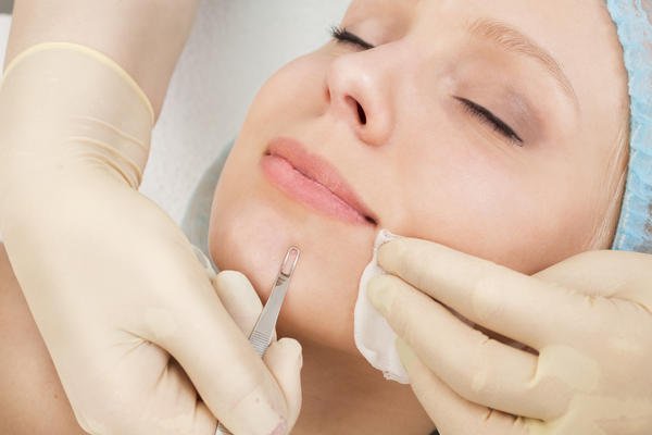 What are the chances of laser acne removal not working?