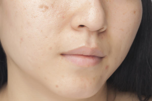For acne and dark spots on the t-zone, what type of cream or moisturizer is recommended?