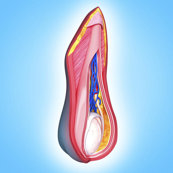 Can trauma to the scrotum cause deep vein thrombosis?