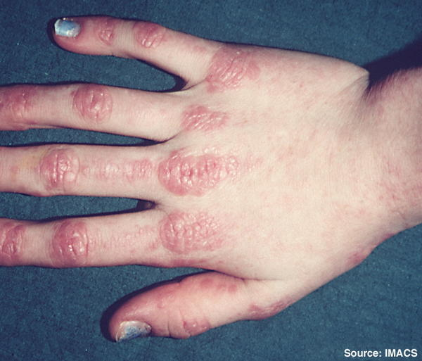 What are symptoms of dermatomyositis?