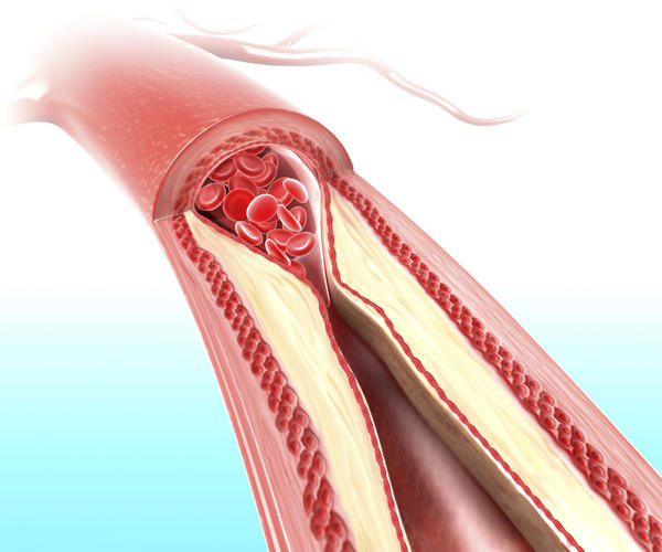 What are the signs and symptoms of atherosclerosis?