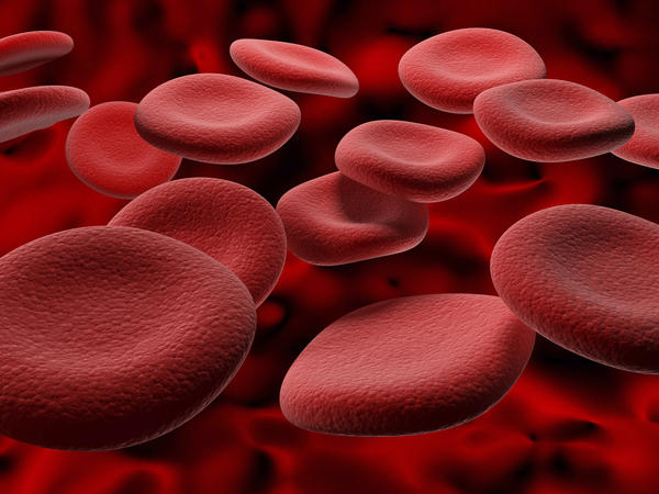 What do blood results mean? TIBC, Hemoglobin, Hematocrit, RBC & MCH all LOW.  Retic count & RDW are HIGH. Iron, Tran Sat, Ferriten, MCV NORMAL