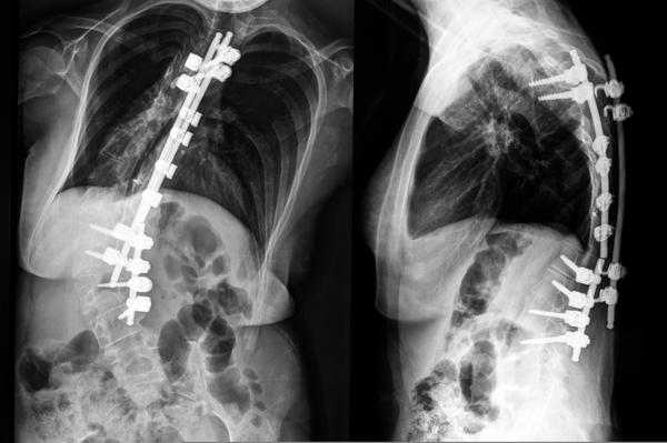 What are the treatment options for 19 yr old with scoliosis with a 42 degree curve?