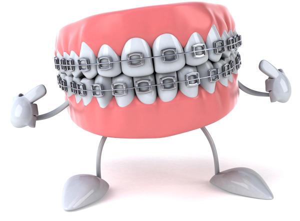 Do you have to wear braces to have surgery to correct an overbite?