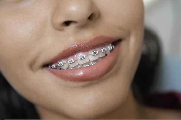 Do braces hurt? When getting them on and tightening?  And how bad is the pain?