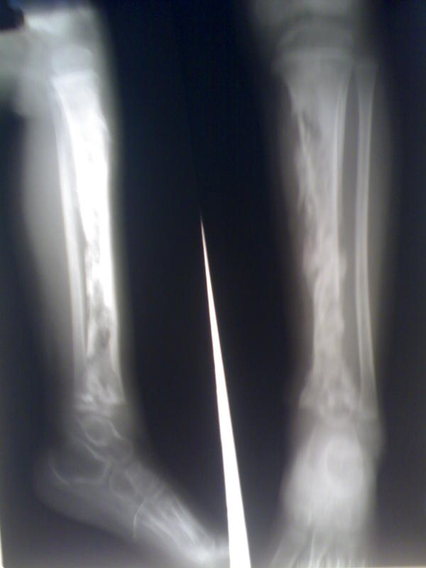 Could long term osteomyelitis still stay in the body?